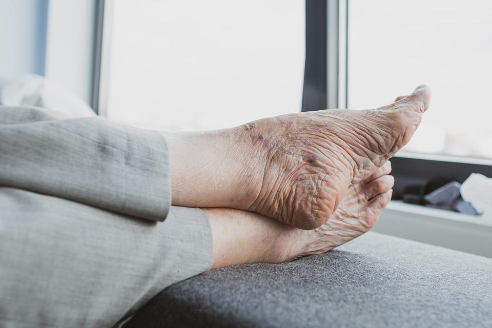 Feet, Old, Old Age, Elderly, Vulnerable, Care
