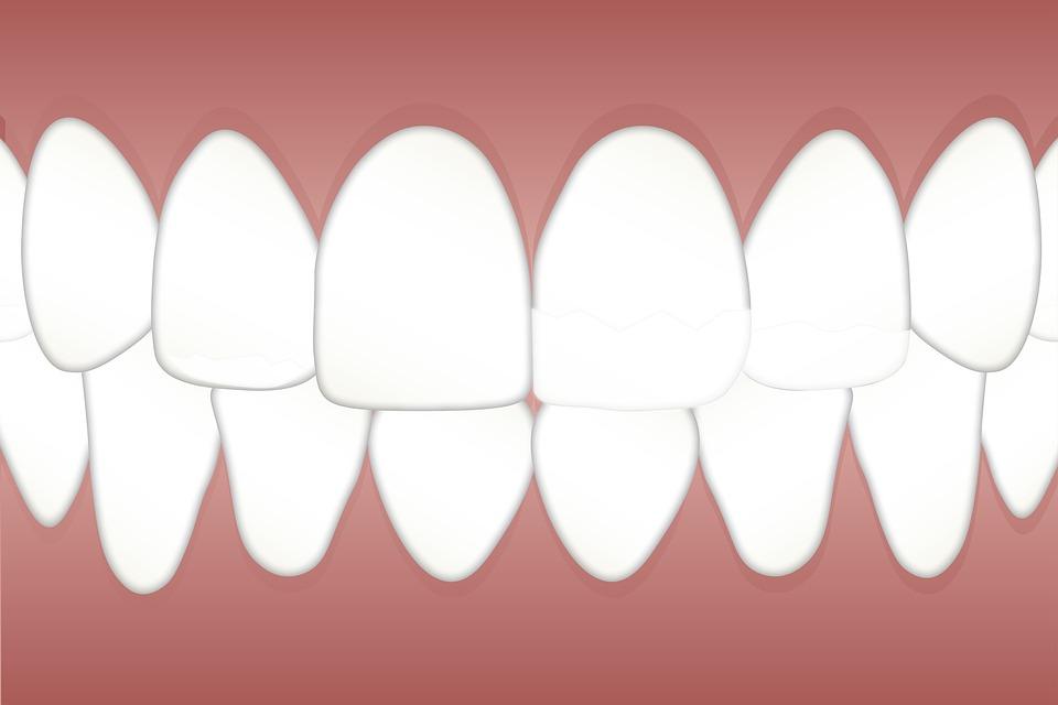 Dental, Fluorosis, Mottled, Teeth, Health, Dentist