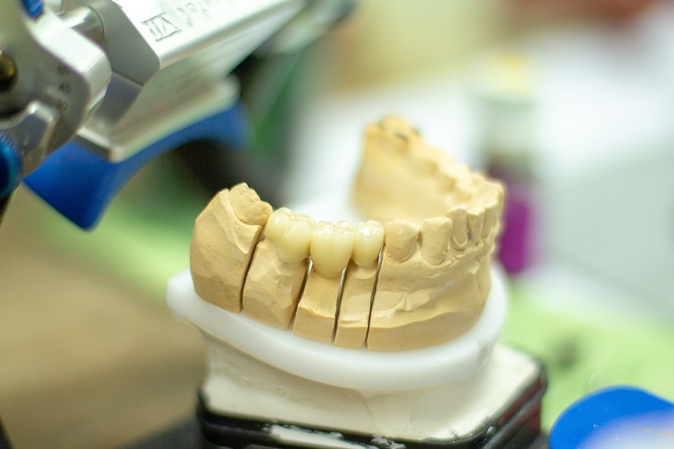 Tooth Replacement, Dentist, Healthcare, Dentistry