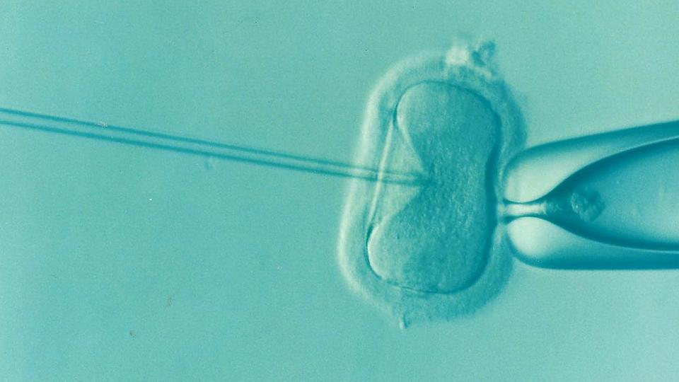 Ivf, Fertility, Infertility, Icsi, Ovum, Semen
