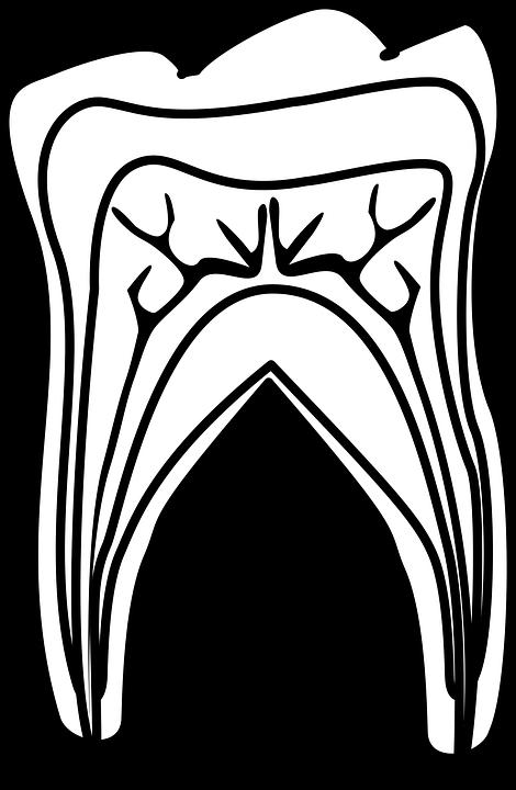 Graphic, Molar Diagram, Molar, Tooth, Teeth