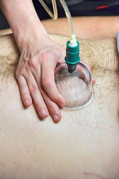 Cupping, Massage Cupping, Massage