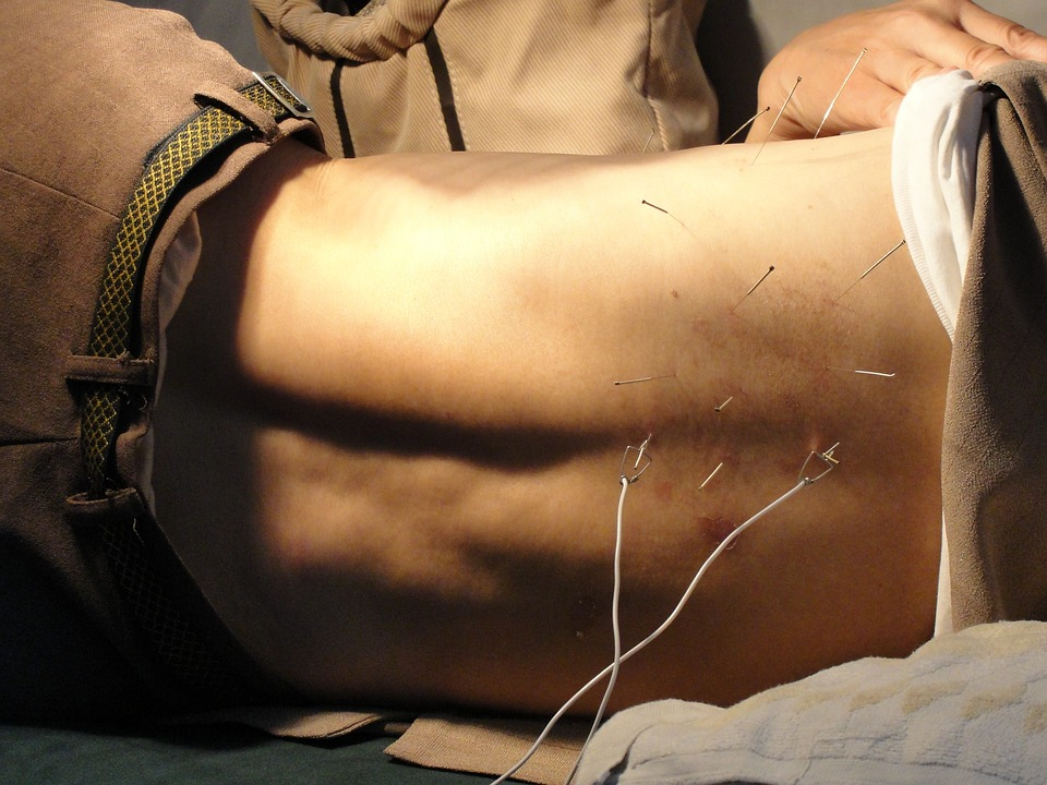 Acupuncture, Man, Needles, Therapy, Health, Treatment