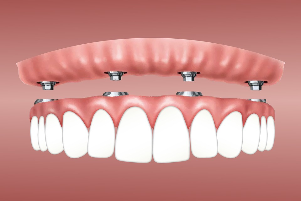 Overdenture, Implant, Retained, Gum Supported, Jaw