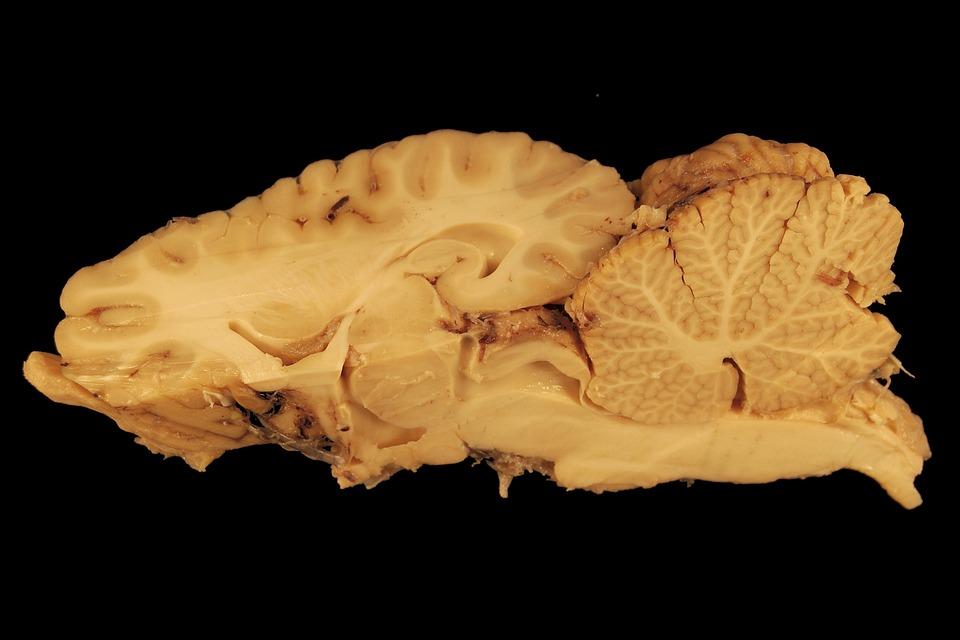 Free photo Preparation Gerhin Brain Head Horse Anatomy - Max Pixel