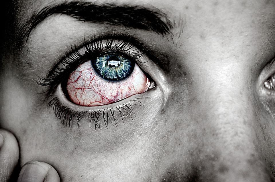 Eye, Sick, Blue, Red, Pain