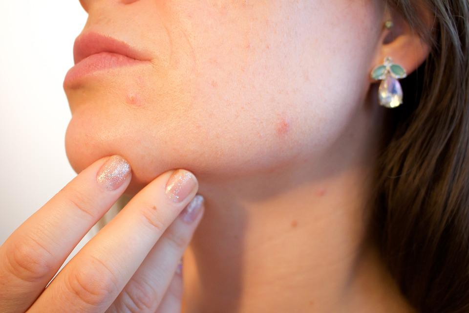 Acne, Pores, Skin, Pimple, Female, Face, Skincare
