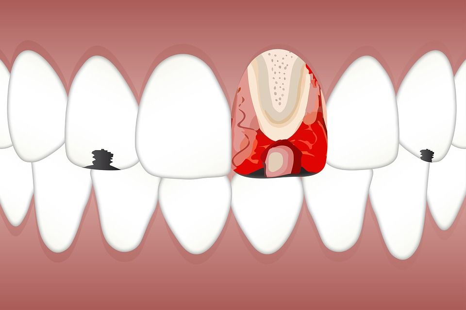 Dental, Pulpitis, White, Spot, Tongue, Patches, Dentist