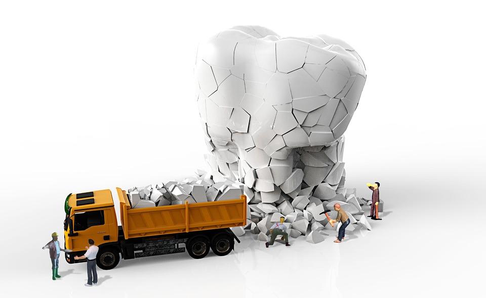 Tartar, Quarry, Miniature Figures, Dental Care, Tooth