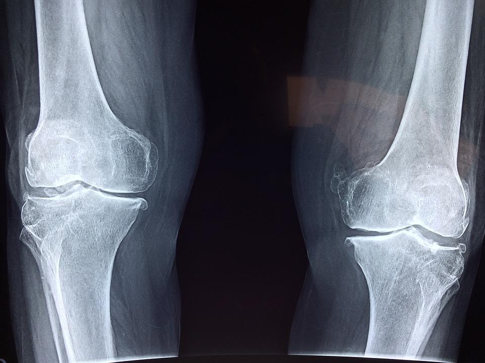 Free photo x ray skeleton anatomy knee medical bone max pixel knee x ray medical anatomy skeleton bone ccuart Images