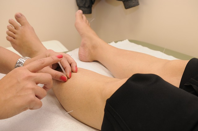 Acupuncture, Therapy, Physical Therapy, Treatment