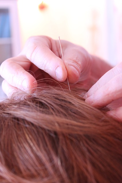 Acupuncture, Alternative Treatment, Chinese Medicine
