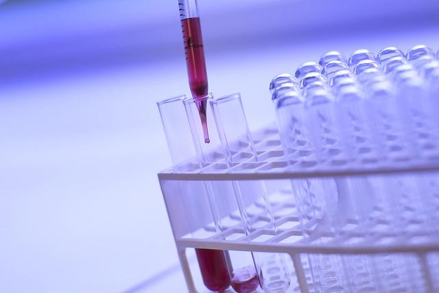 Science, Biology, Test Tube, Liquid, Analysis, Treat