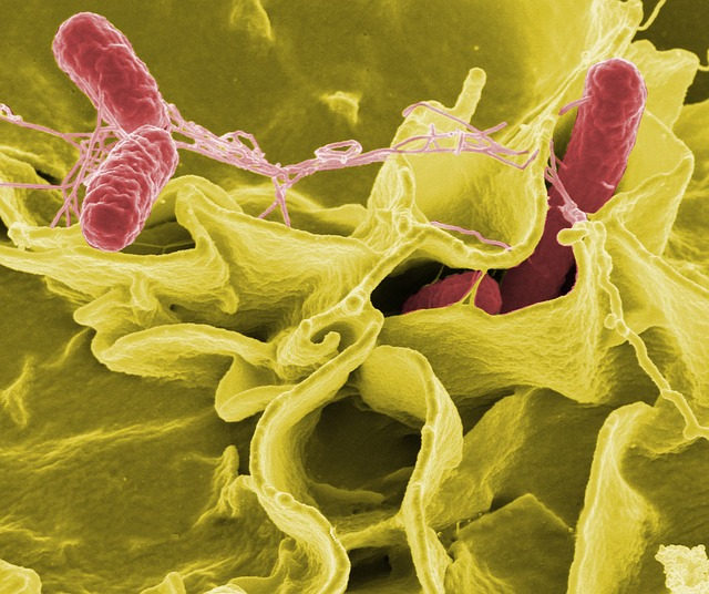 Bacteria, Salmonella, Pathogens, Disease