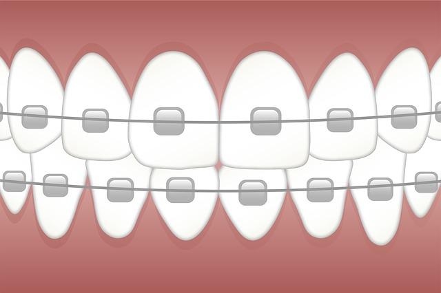 Braces, Teeth, Dentist, Dentistry, Orthodontics, Tooth