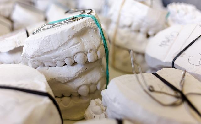Teeth, Models, Gypsum, Dentist, Dental, Dentistry