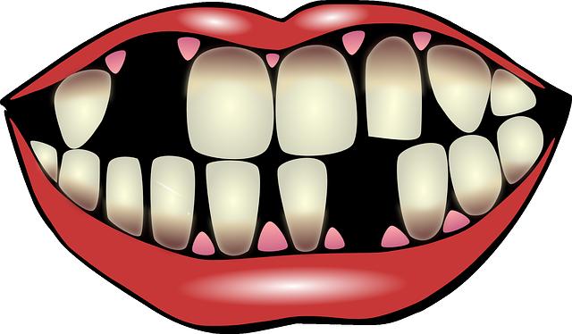 Dental Hygiene, Dental Care, Falling Out Of Teeth