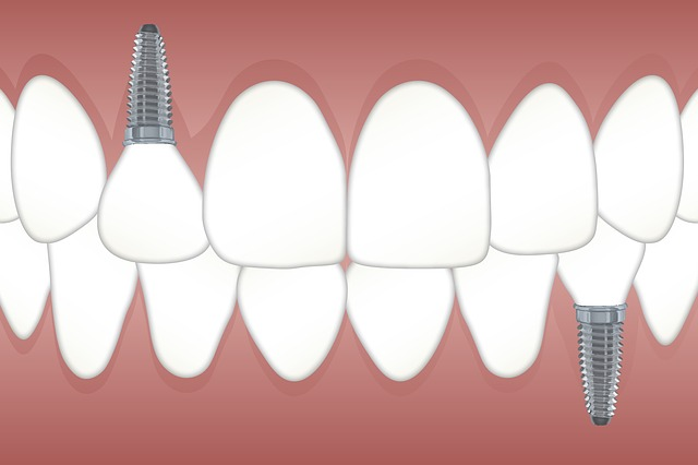Teeth, Implant, Orthodontics, Jaw, Dentist, Dental