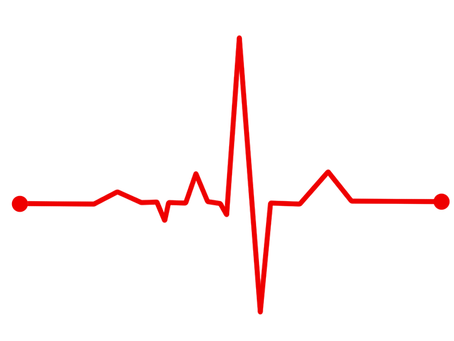 Heart Rate, Bpm, Ecg, Ekg, Electrocardiogram, Ecg Waves