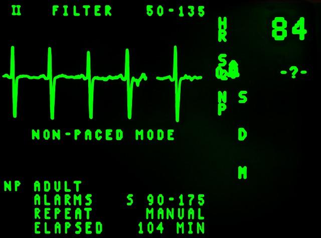 Electrocardiogram, Beat, Cardiology, Display, Ekg
