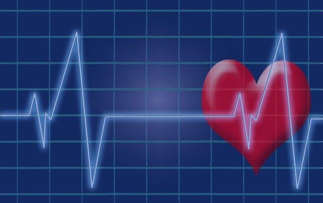 Heartbeat, Pulse, Heart, Ecg, Electrocardiogram
