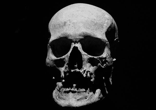 Skull, Corpse, Halloween, Skeleton, Anatomy, Jaw