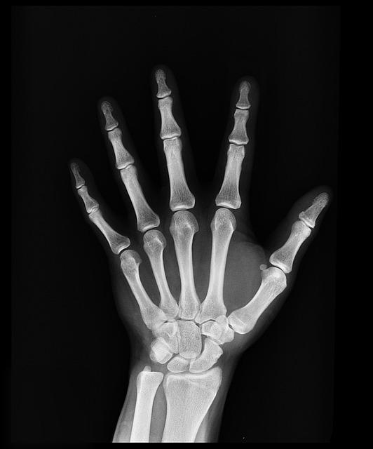 X-ray, Health, Arm, Doctors, Medicine, Bone, Hospital