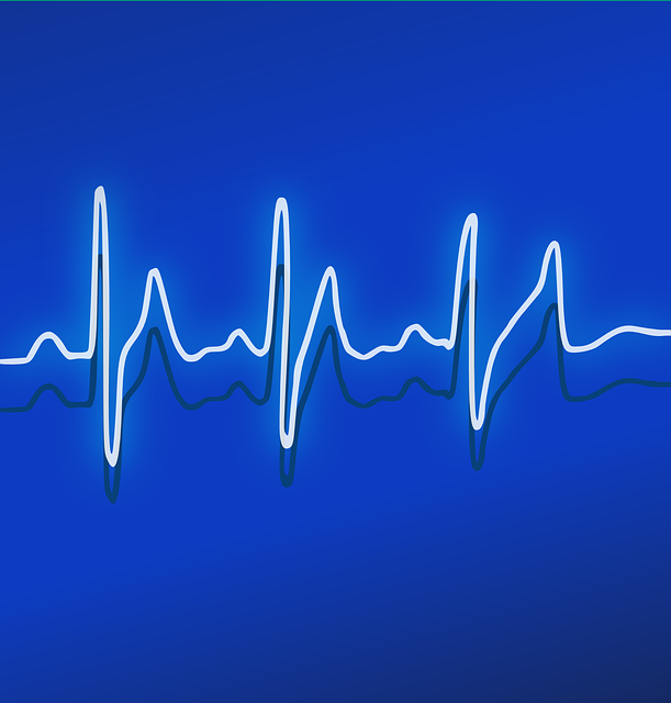 Ekg, Heartbeat, Frequency, Pulse, Healthcare, Medicine