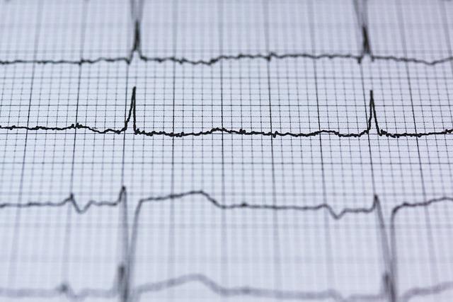 Ecg, Electrocardiogram, Medical, Heartbeat, Heart
