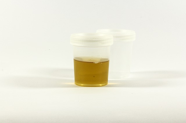 The Test, Urine Container, Urine, Inflammation