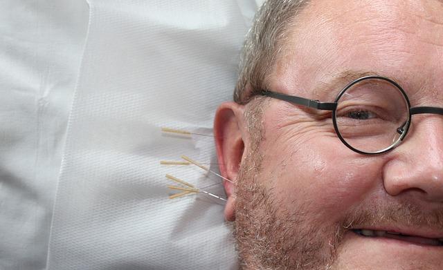 Acupuncture, Alternative Medicine, Far East, Medical