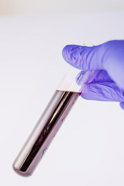 Blood, Medical, Attempts, Tube, Diagnostics, Laboratory