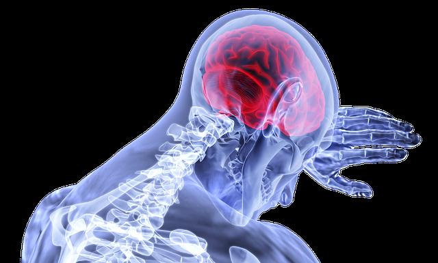 Brain, Inflammation, Stroke, Medical, Healthcare