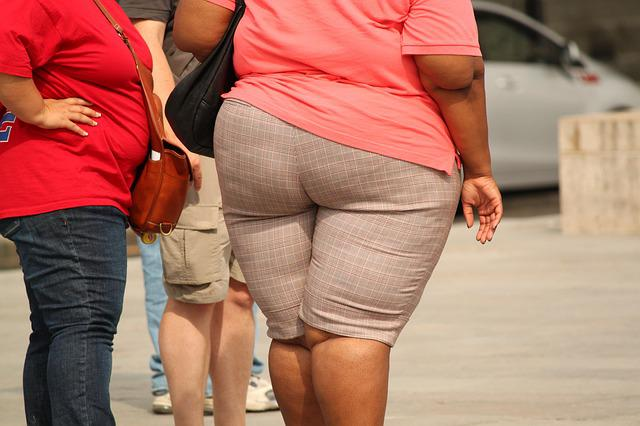 Thick, Overweight, Obesity, Weight, Misshapen