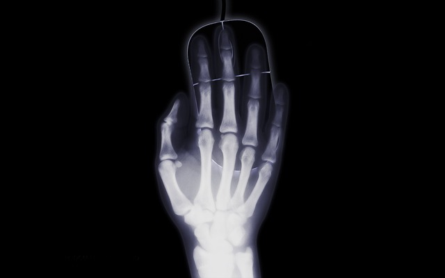 Hand, X Ray, X Ray Image, Mouse, Candling, Computer