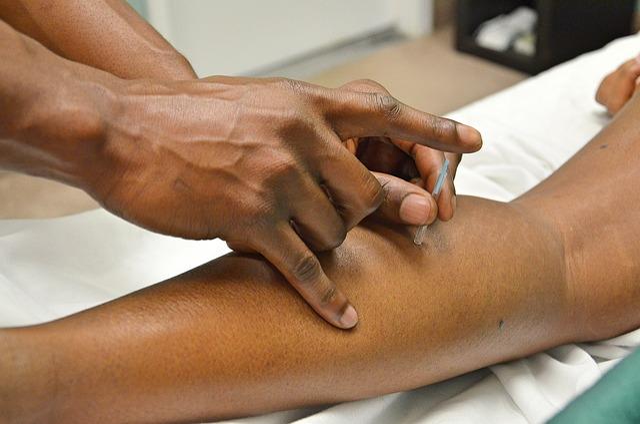 Acupuncture, Asian Medicine, Needles