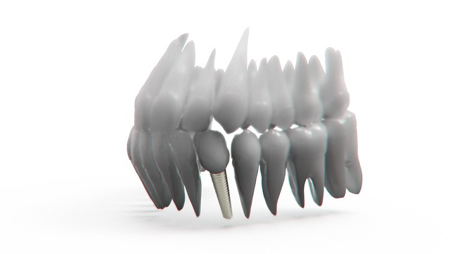 Teeth, Jaw, 3d Model, Orthodontics, The Implant