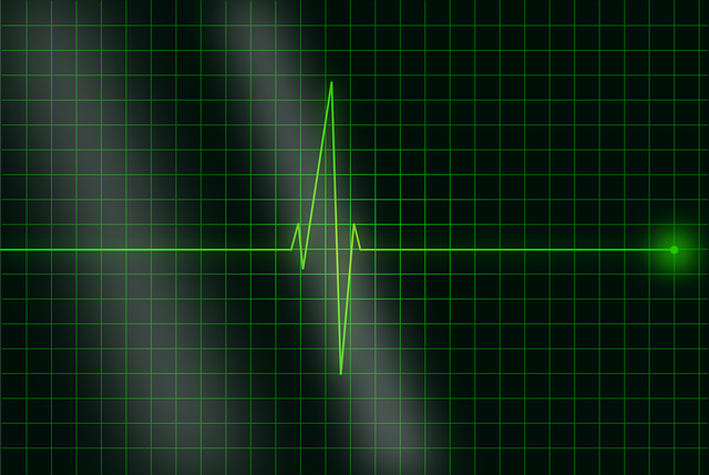Electrocardiogram, Ecg, Heartbeat, Frequency, Pulse