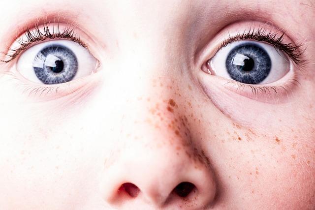 Surprised, Blue Eyes, Freckles, See, Watch, Eyes, Scare