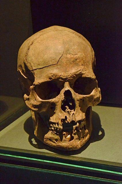 Skull, Skeleton, Head, Eye Socket, Teeth, Death, Museum