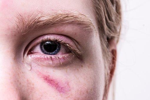 Trauma, Injured, Haematoma, Tear, Violent, Traumatized